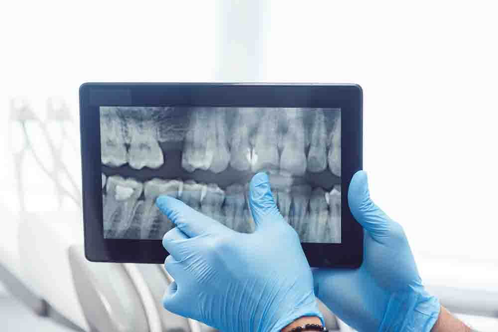 £17,500 damages for young woman who needed front two teeth removing after negligent treatment to straighten them