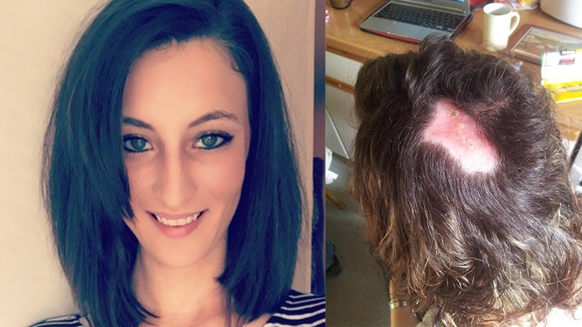 Damages rewarded after Toni and Guy left chemical burns on 21-year-old client