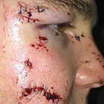 Leeds man seeking compensation for injuries following unprovoked pub attack which has left him scarred and afraid to go out