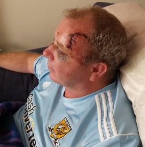 Rehabilitation support key in Hudgell Solicitors' claim for cyclist left partially blinded