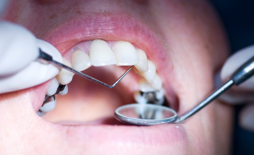 Kim's dental negligence story, the painful tr-ooth