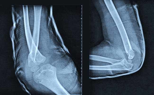 £45,000 compensation for man after hospital admits errors in treatment of broken elbow