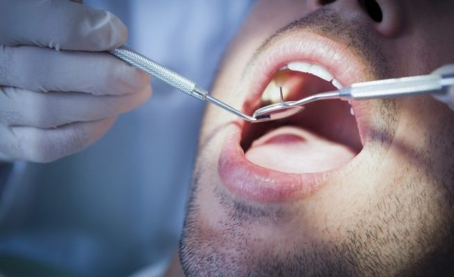 £55,000 damages for patient who needed 15 teeth removing due to poor dental care