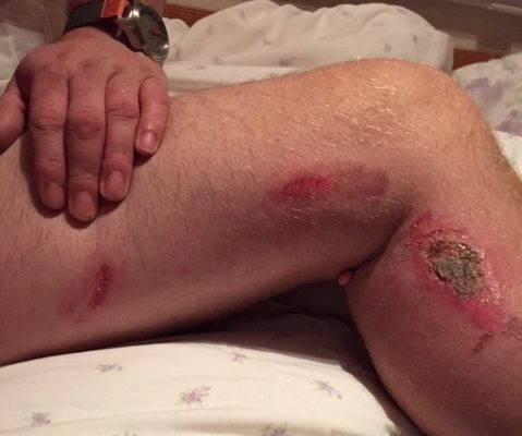 Damages for patient who suffered burns when GP set flammable numbing liquid alight during skin tag removal