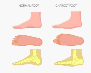 Charcot foot graphic