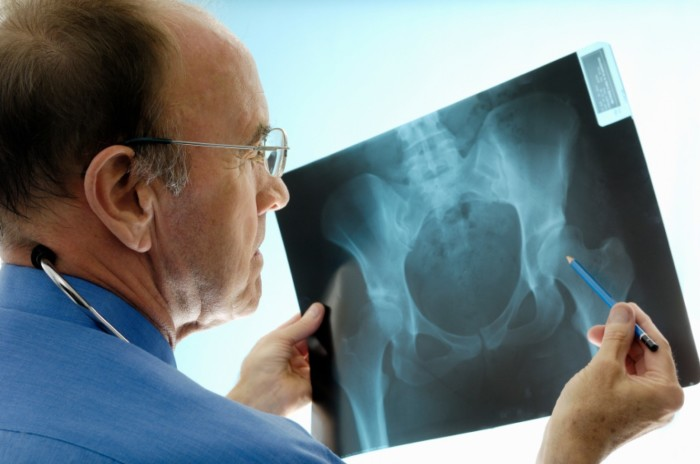 Doctor misses hip x-ray