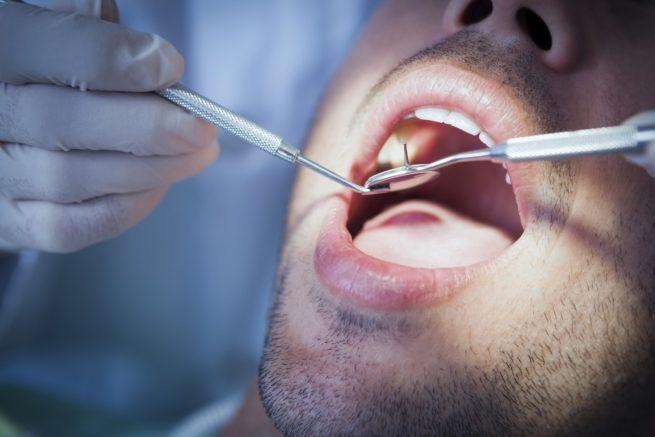 Dental negligence claims | Man receiving dental treatment